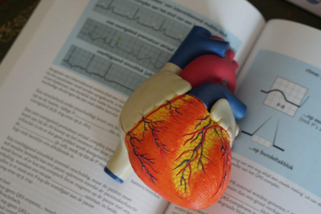 fréquence cardiaque élevée à l'effort