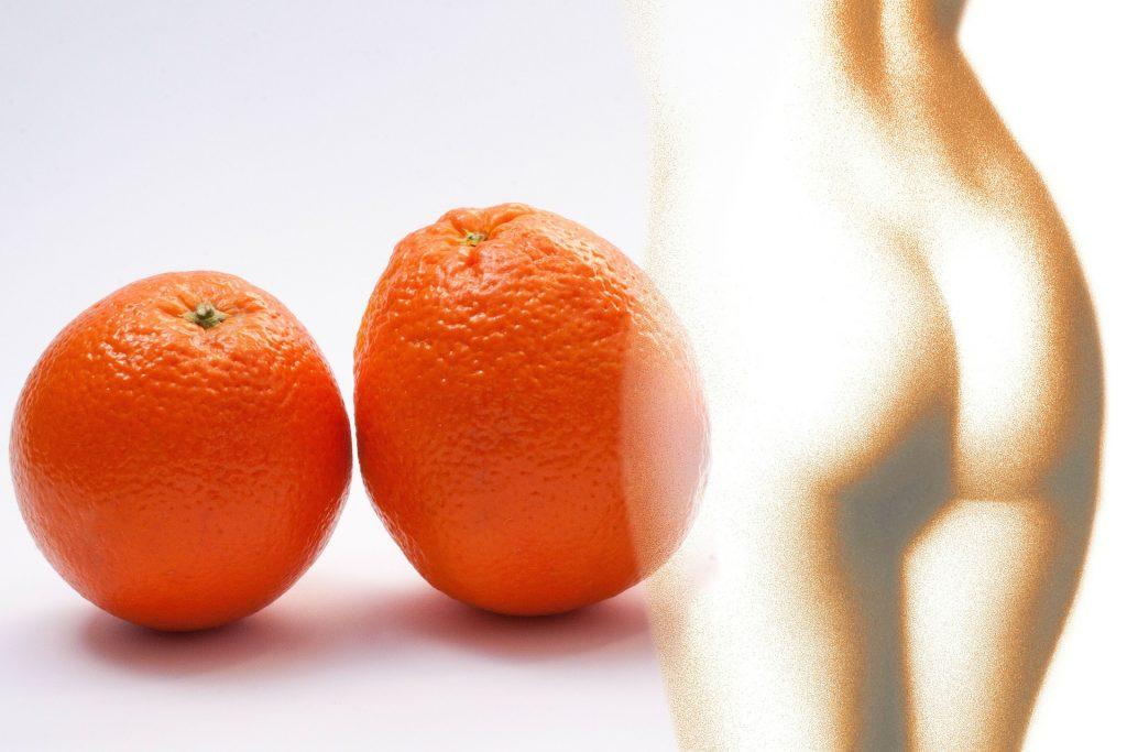 traitement efficace contre la cellulite incrustée